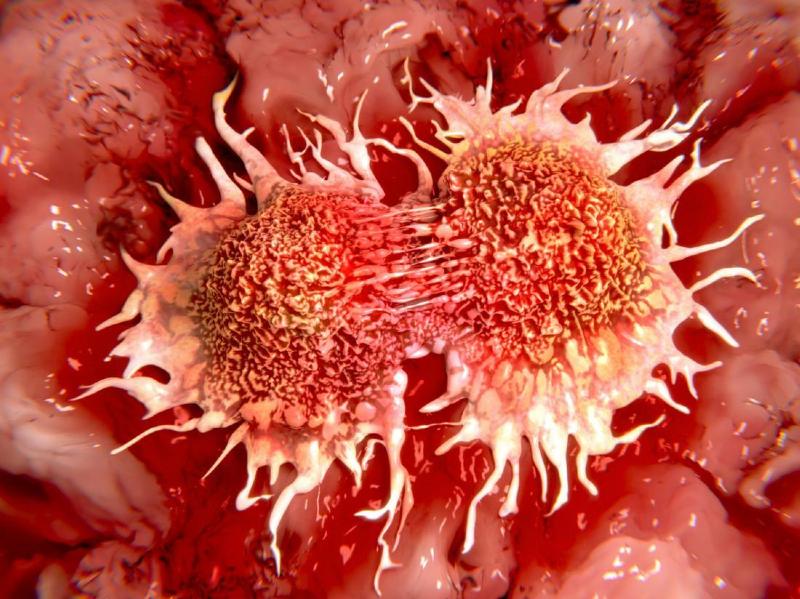درباره سرطان غدد لنفاوی بیشتر بدانیم