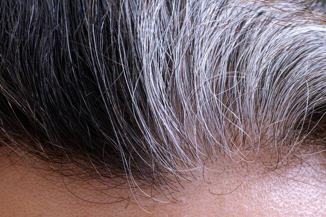 سفید شدن موها، چه نکاتی را در مورد سلامتی تان آشکار می سازند