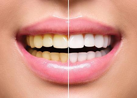 10 روش طلایی برای سفید کردن دندانها