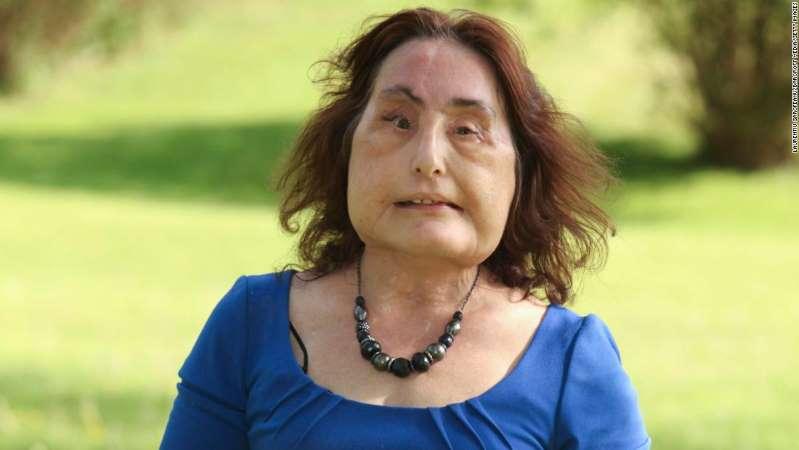 مرگ اولین زن جهان که صورت پیوندی داشت + عکس