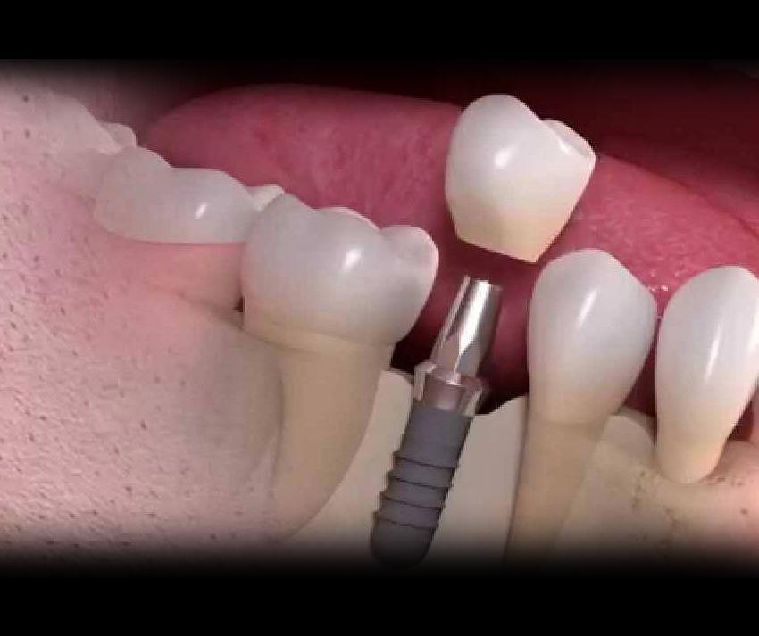 چگونه ایمپلنت و دندان های  مصنوعی را تمیز نگه داریم؟