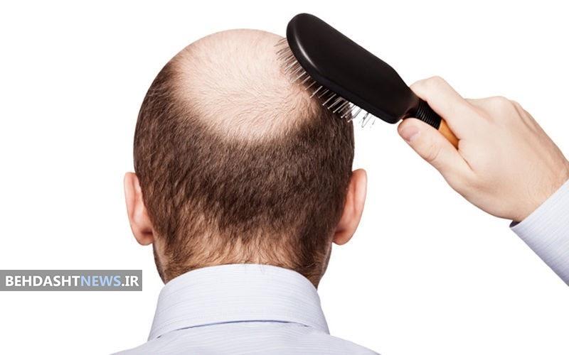پیاز برای درمان طاسی سر؛10 روش موضعی برای تحریک رشد مو