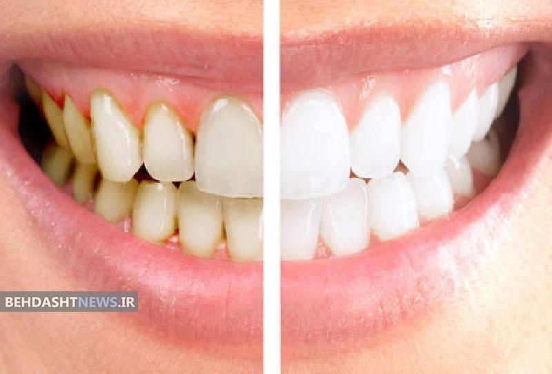 یک ترکیب عالی برای جرمگیری دندان