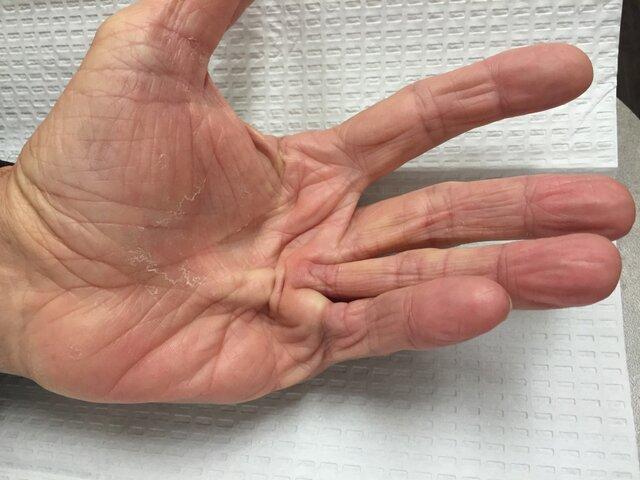 از بیماری کف دست چه میدانید؟