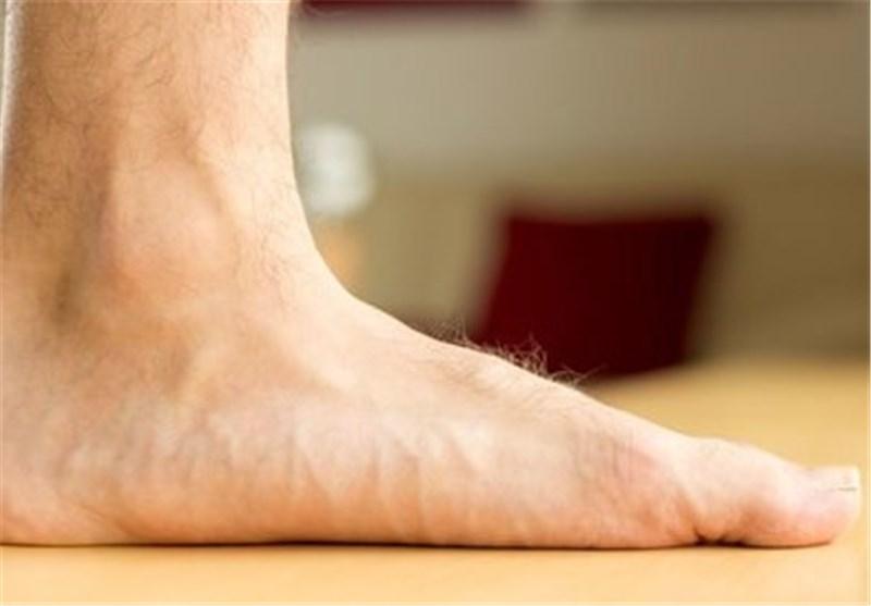 علل کف پای صاف