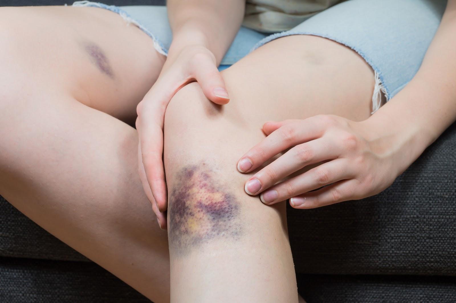 عوامل کبودی بدون علت در بدن چیست؟