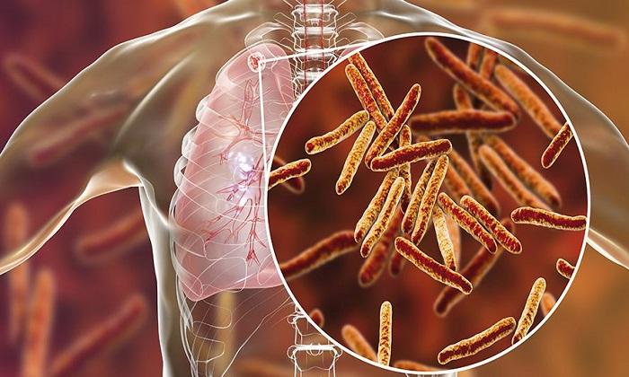 درباره سل، علائم و درمان/ تفاوت سرفههای سل با کرونا