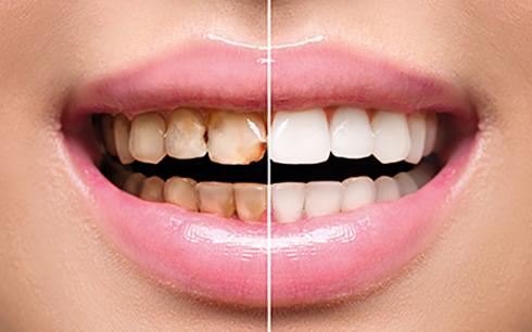 پوسیدگی دندان چرا و چگونه اتفاق می افتد؟