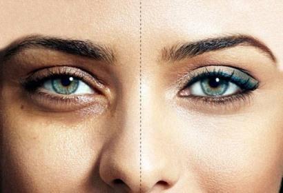 رفع سیاهی دور چشم با چند راهکار ساده