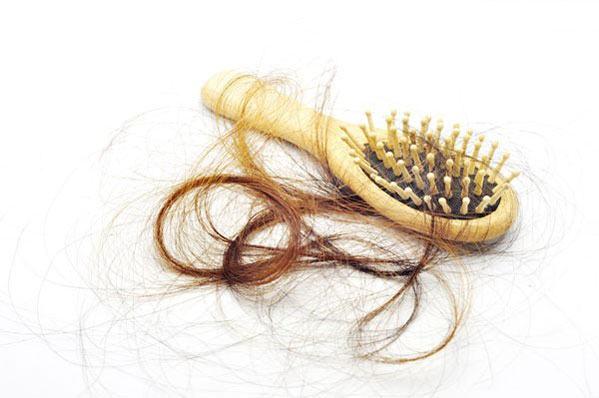 بهترین روش برای درمان ریزش مو پس از زایمان