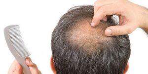 دلایلریزش مو  پس از ابتلا به کووید 19
