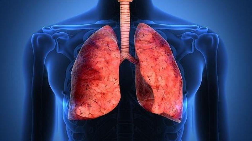 از کجا بفهمیم ریه هایمان درگیر