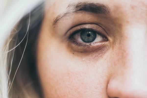 راه چاره ای برای سیاهی و کبودی دور چشم