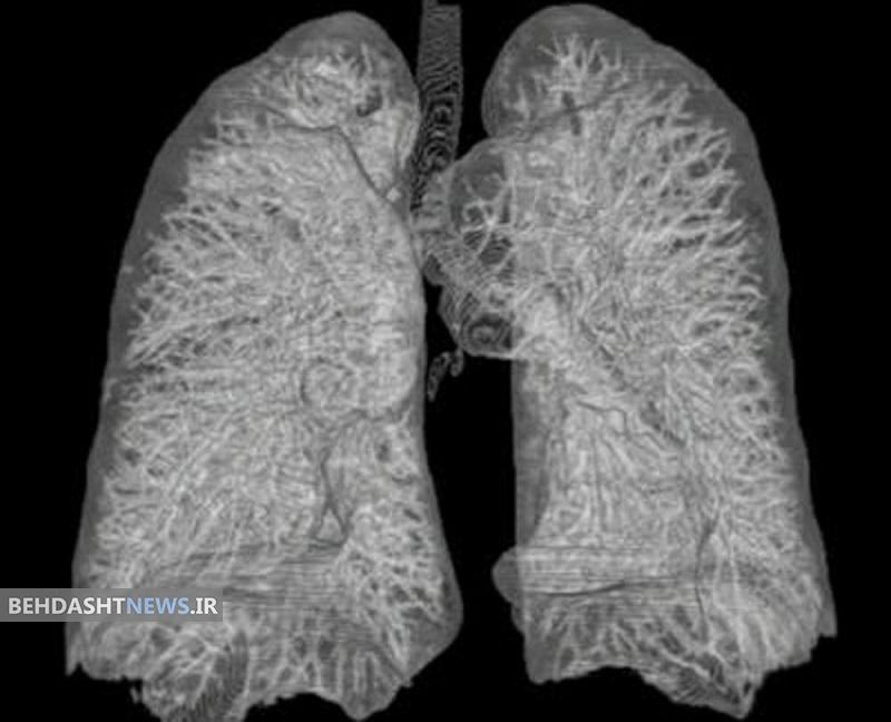 تولید بافت ریه یک گام به موفقیت نزدیک شد