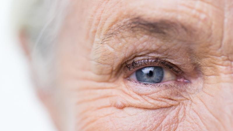 راهکار سریع برای درمان خشکی چشم