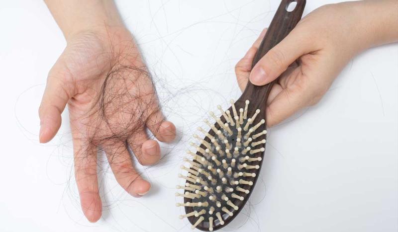 تمام توجیههای علمی برای ریزش دائمی موها