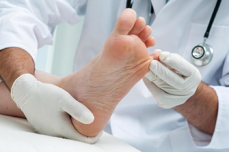 ۱۲ دستورالعمل طبیعی برای درمان میخچه پا