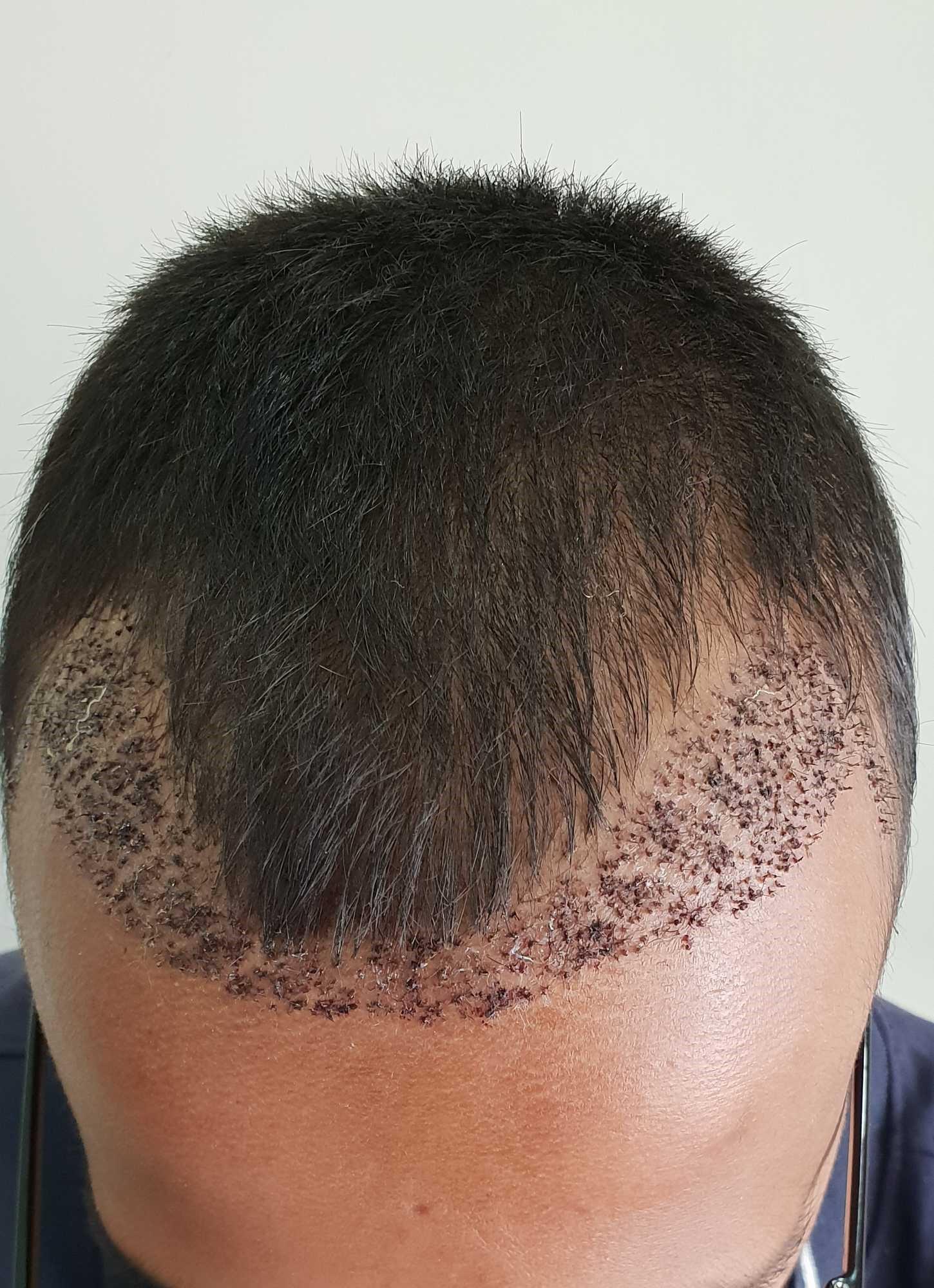 هزینه انواع کاشت مو در 1400 چقدر است؟