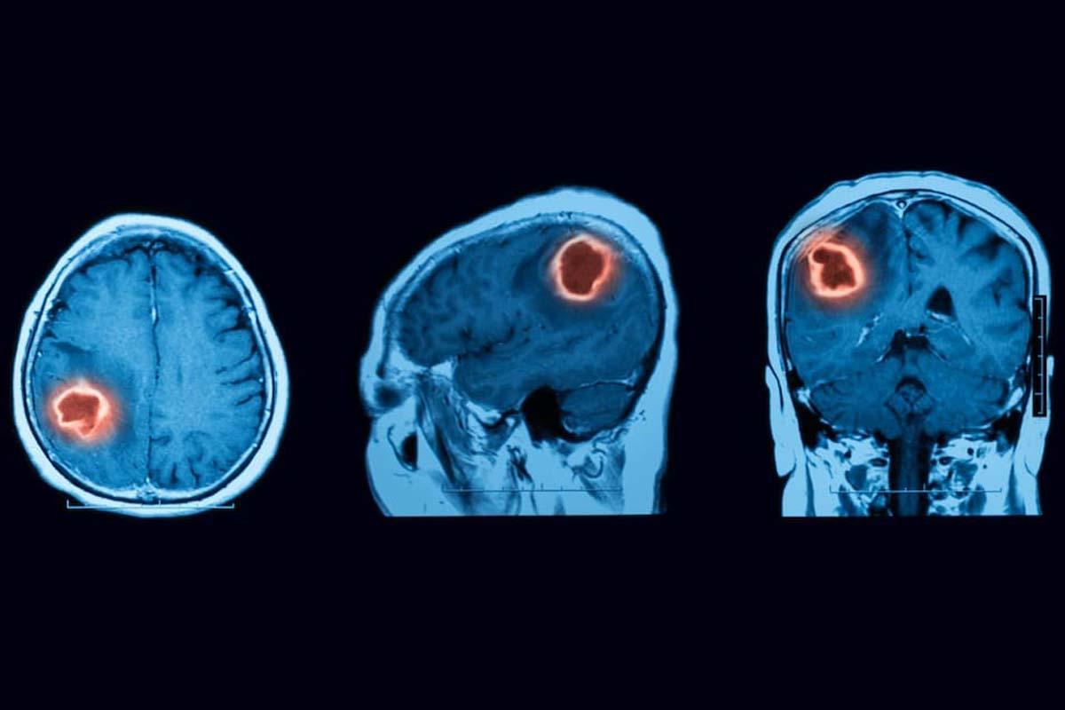 موفقیت در درمان تومورهای بدخیم مغز با نانوحامل