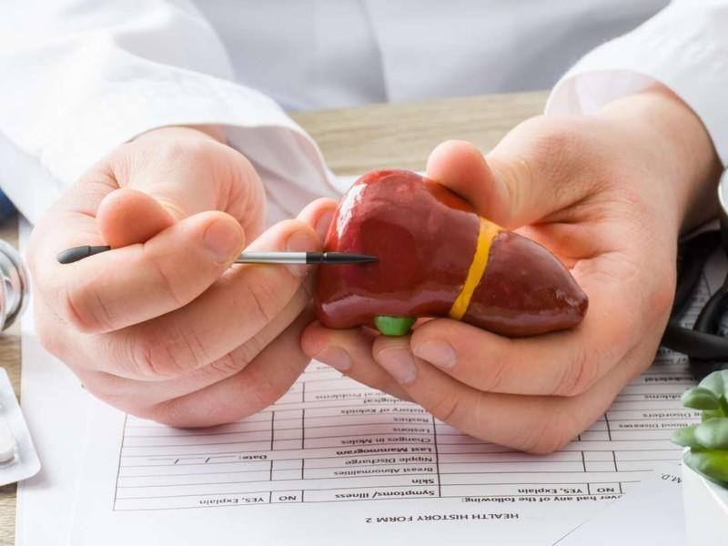 روش ساده گیاهی برای درمان  کبد چرب