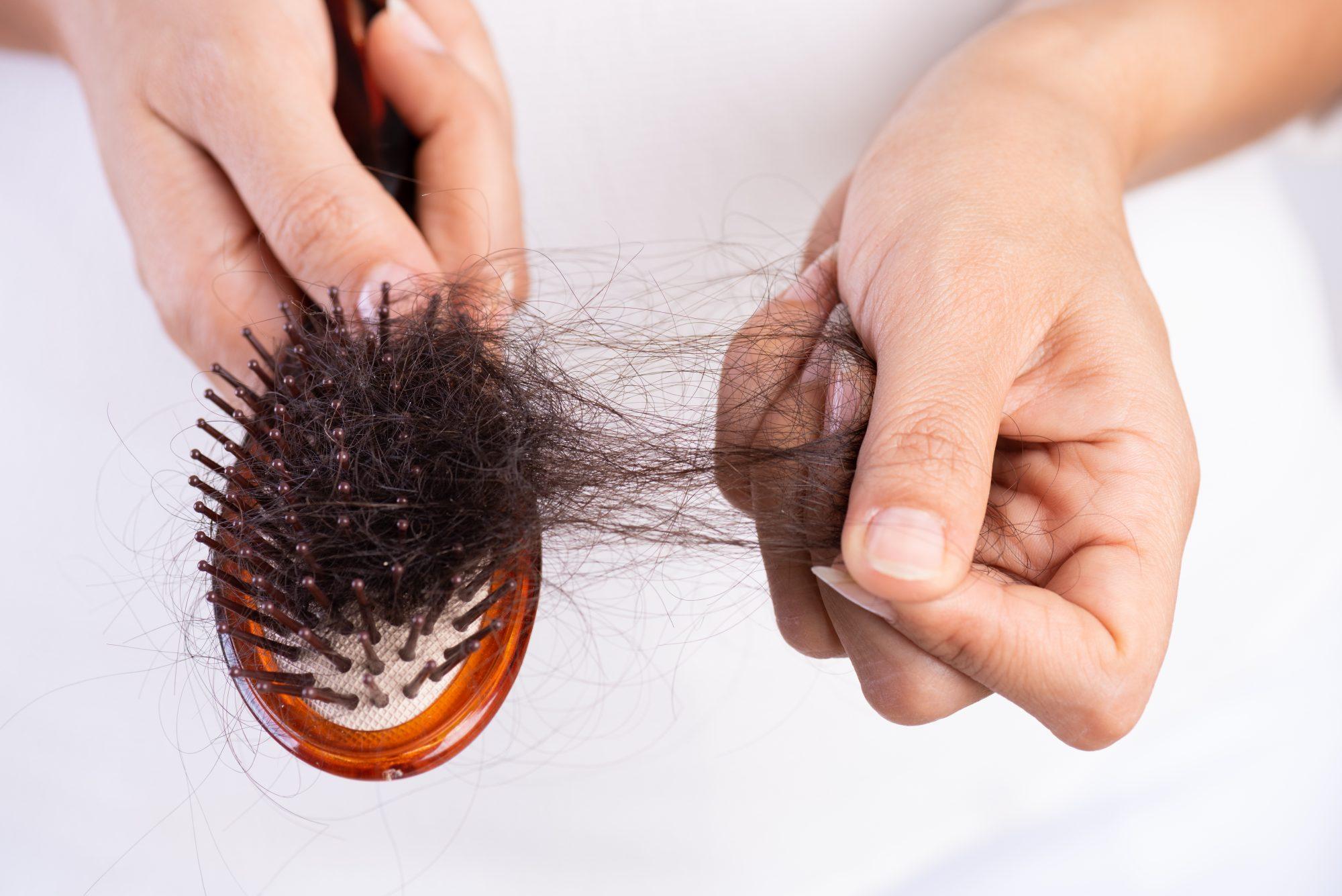 به روش طب سنتی از ریزش مو جلوگیری کنید