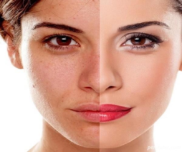 اگر پوستتان دو رنگ می شود به این بیماری ها مبتلا هستید+درمان آن با طب سنتی