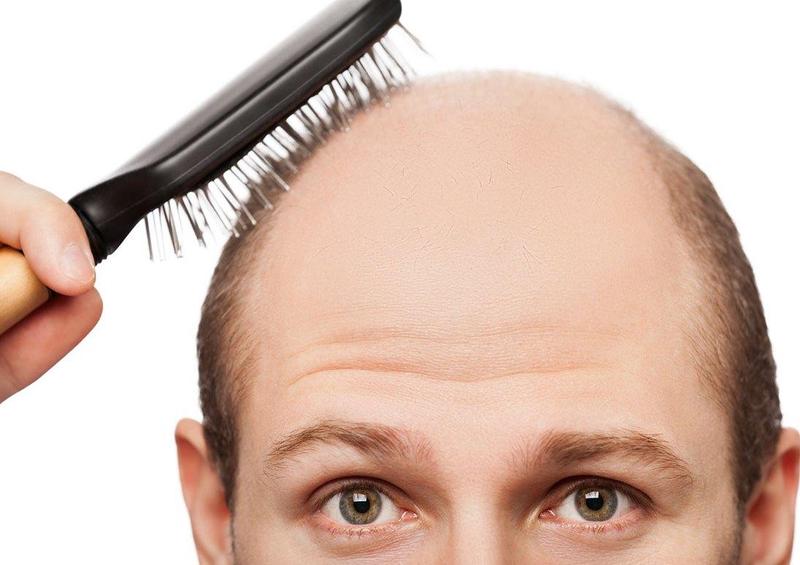 با ریزش موی ناشی از کرونا چکار کنیم؟