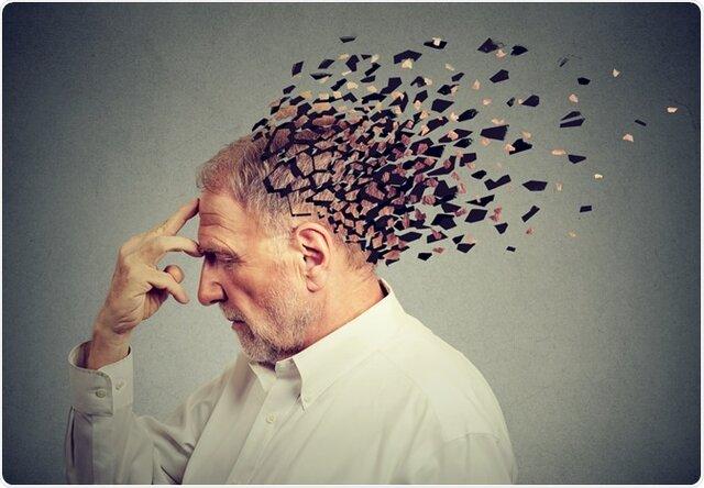 الگوریتمی که خطر ابتلا به آلزایمر را پیشبینی میکند
