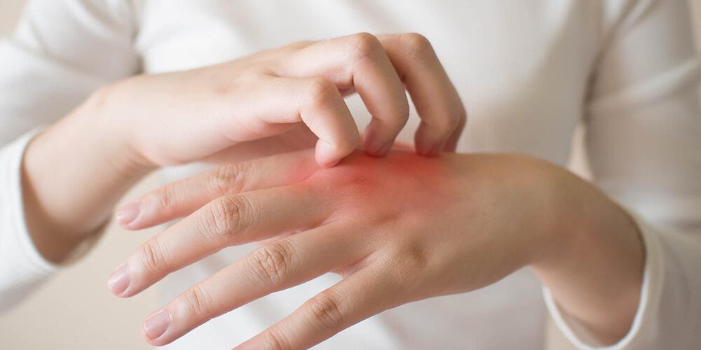 علل اگزمای پوستی+درمان
