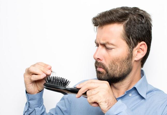 هرآنچه آقایان باید از ریزش مو بدانند
