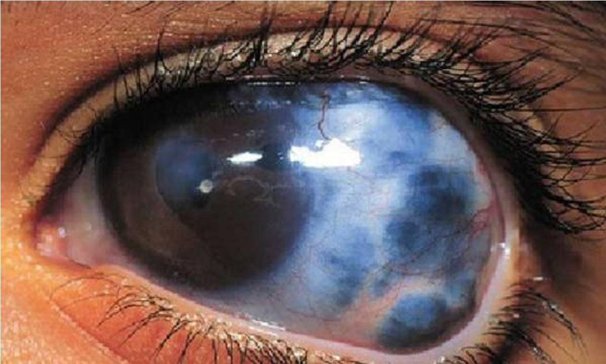 کافئین میتواند سلامت چشم را به خطر بیندازد