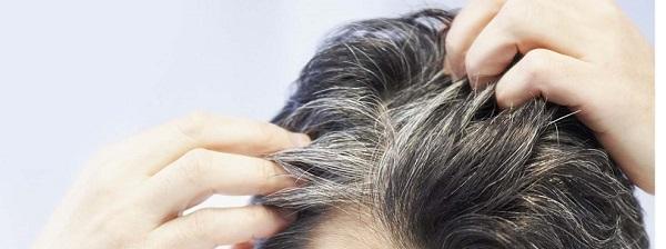 موهای خاکستری با رفع استرس به رنگ طبیعی خود بازمیگردند