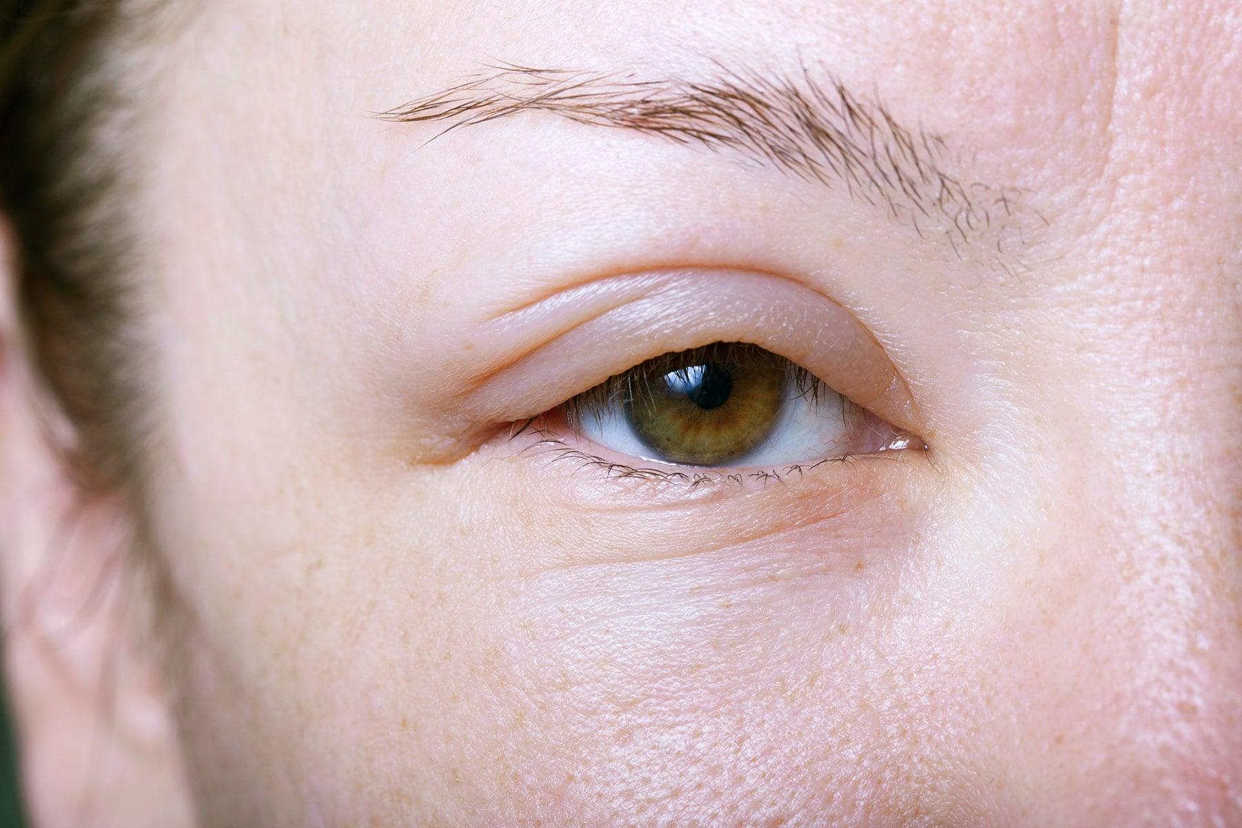 علت پف صورت بعد بیدار شدن از خواب چیست؟