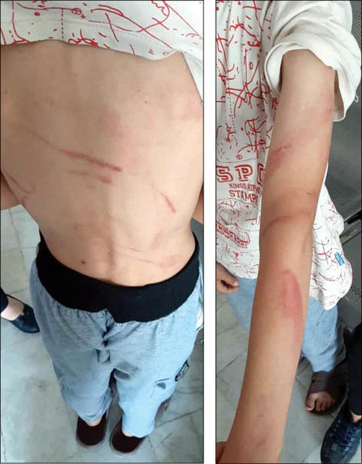 دستبرد کودکان راز کودک آزاری های هولناک را فاش کرد+عکس تکاندهنده