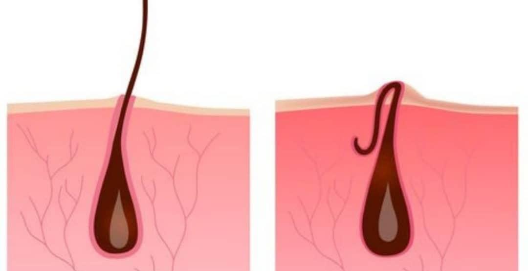 درمان موهای زیرپوستی با آسپرین !