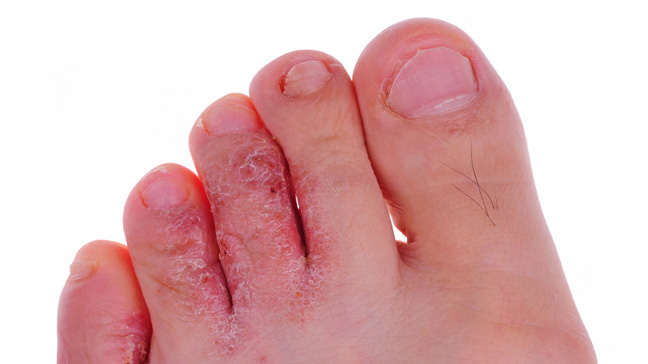 از حمله درماتوفیت ها تا بیماری پای ورزشکاران!