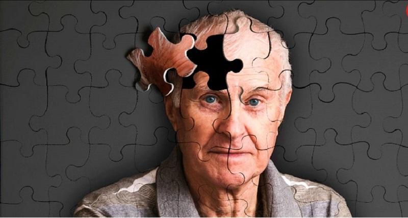 اولین نشانه آلزایمر چیست؟