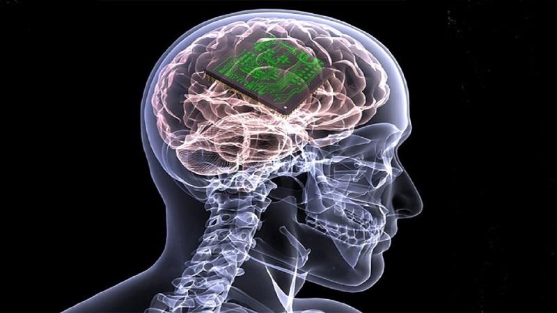 با ایمپلنت مغزی، افکار به گفتار تبدیل میشوند