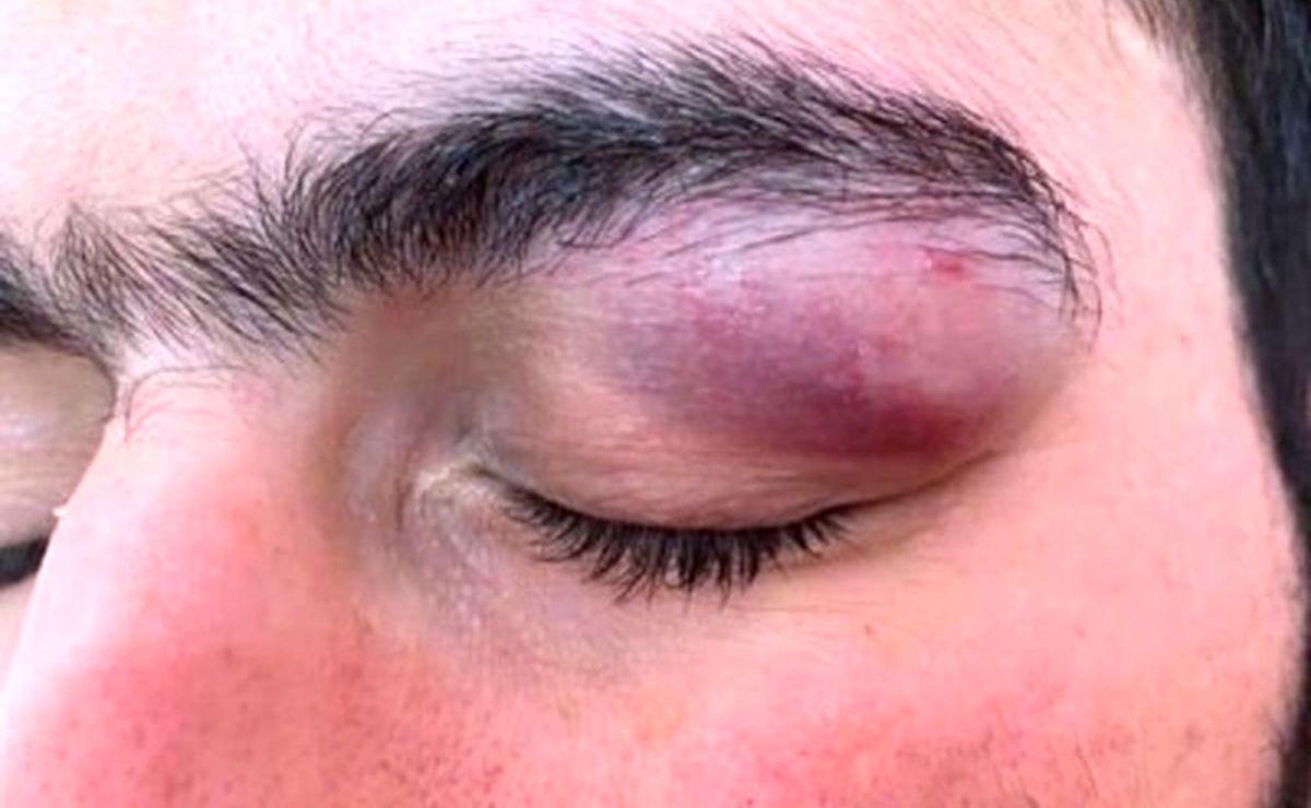 حمله همراه بیمار کرونایی با چاقو به چشمان یک پزشک! + عکس