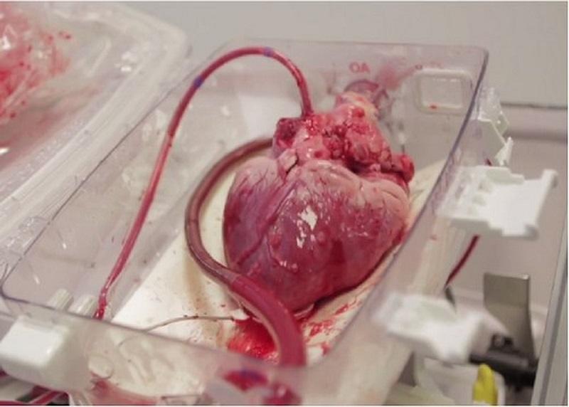 عملیات پیوند قلب از اهواز به تهران با موفقیت انجام شد