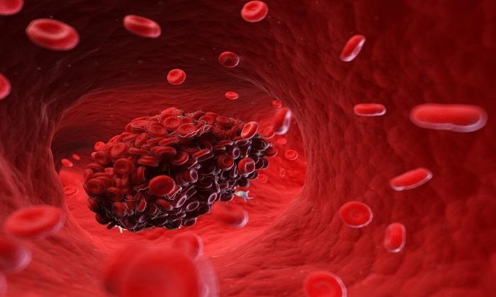 این دارو از تشکیل لخته خون بعد از عمل جراحی جلوگیری میکند
