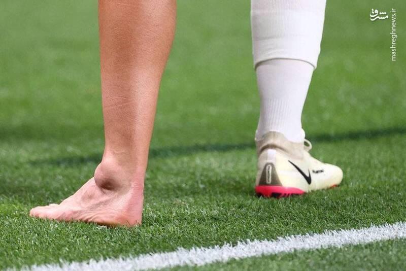 مصدومیت شدید بازیکن رئال در المپیک + عکس