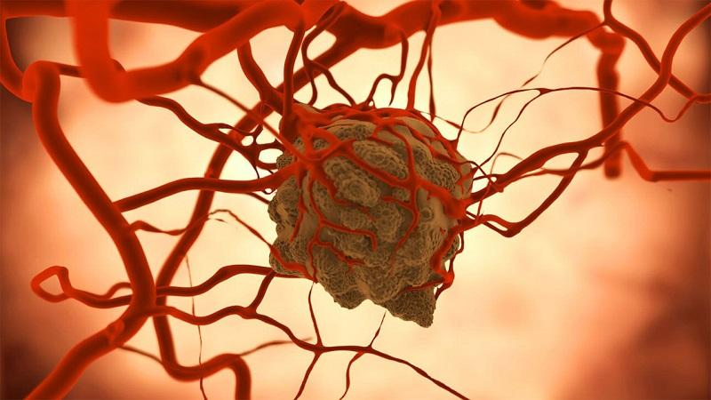 سلولهای بنیادی چگونه تومورهای سرطانی را درمان میکنند؟
