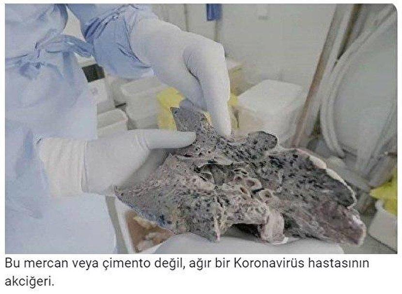 تصویر ترسناک از ریه یک بیمار شدید کرونایی + عکس