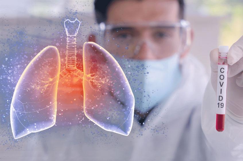 میزان درگیری ریه بیماران مبتلا به کووید19 با این علائم قابل تشخیص است