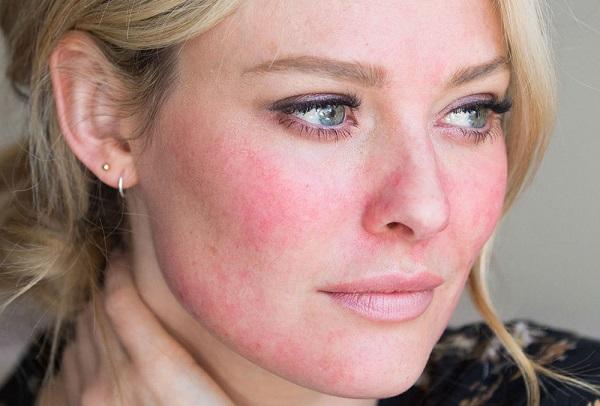 بیماری قرمزی پوست مسری است؟ +درمان