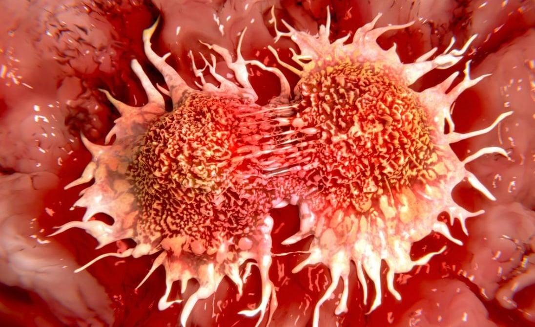 هر ماه تاخیر در درمان  سرطان چقدر خطر مرگ را بالا می برد؟