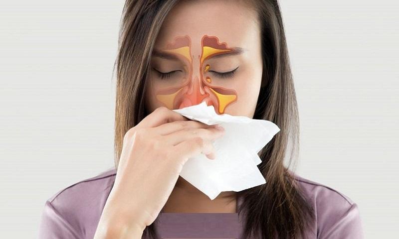 پولیپ بینی را با  این داروهای گیاهی و خانگی درمان کنید