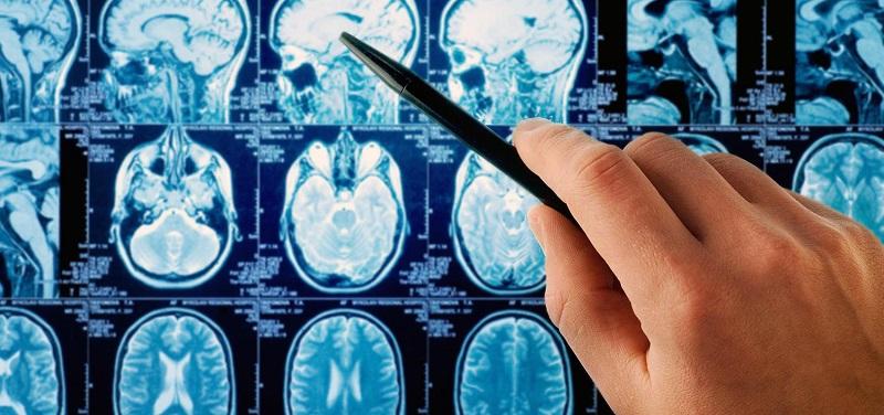 علائم خاموش تومور مغزی