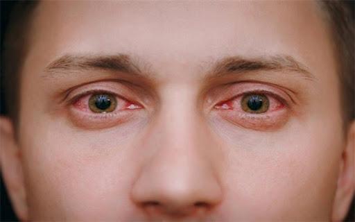 شایع ترین نشانه های «چشمی» ابتلا به کرونا
